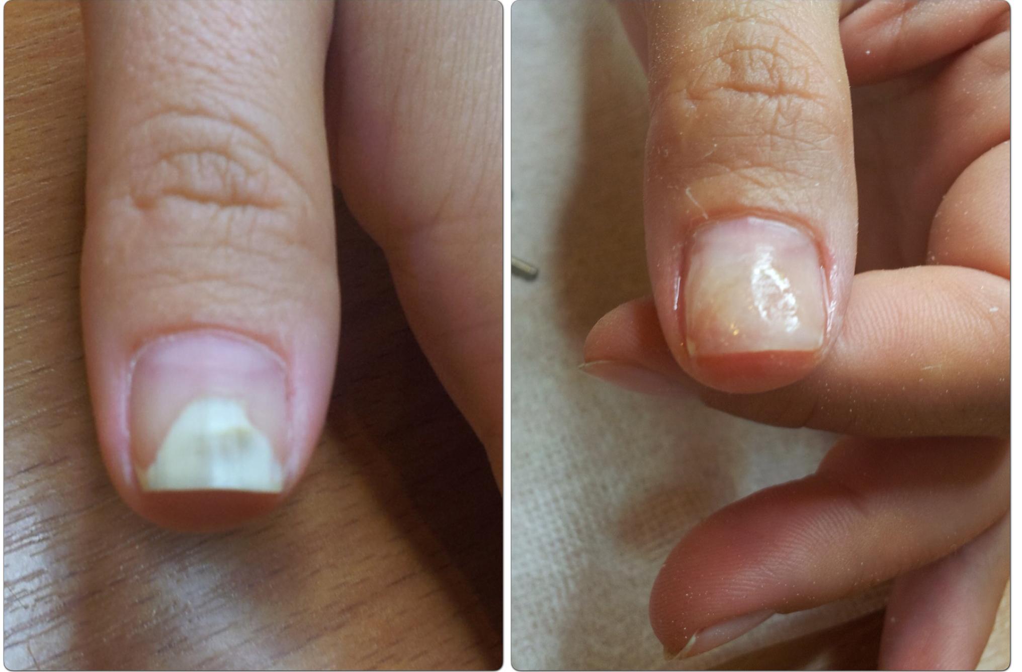 протезирование ногтей фото