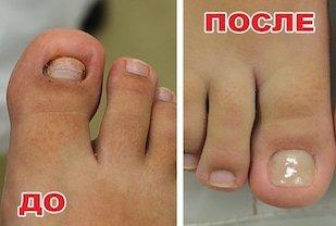Перед медицинским педикюром и после