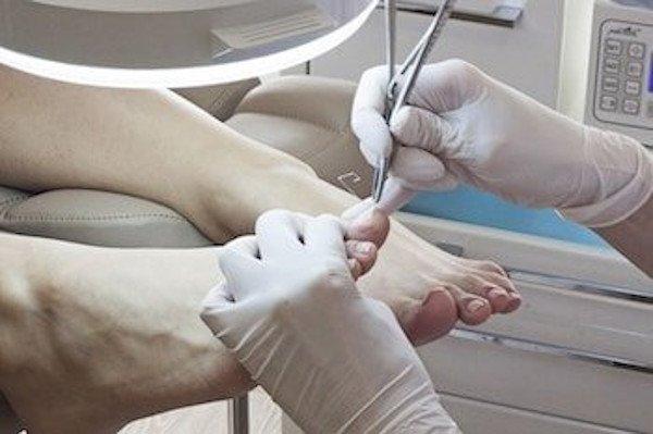 Лечение и удаление вросших ногтей