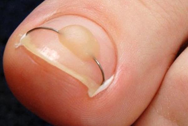вид ногтя после лечения вросшего ногтя