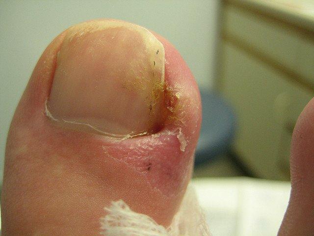 Лечение вросшего ногтя на большом пальце