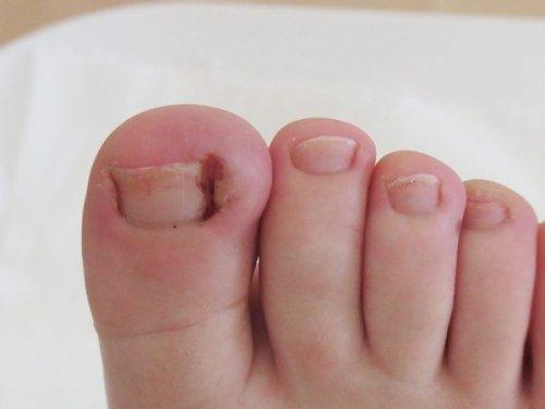 Вросший ноготь у детей лечение
