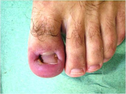 Вросший ноготь на большом пальце