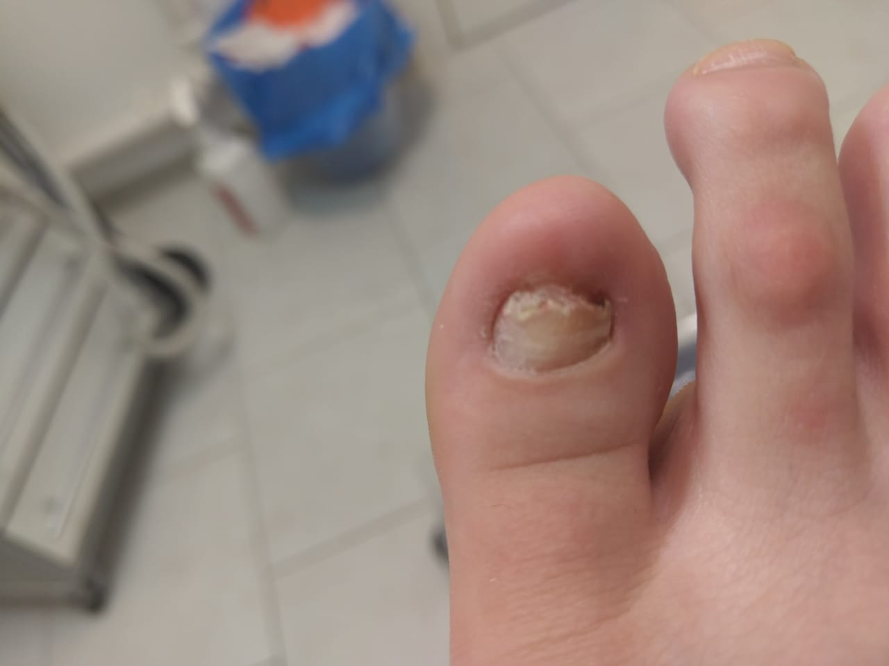Состояние ногтя до протезирования