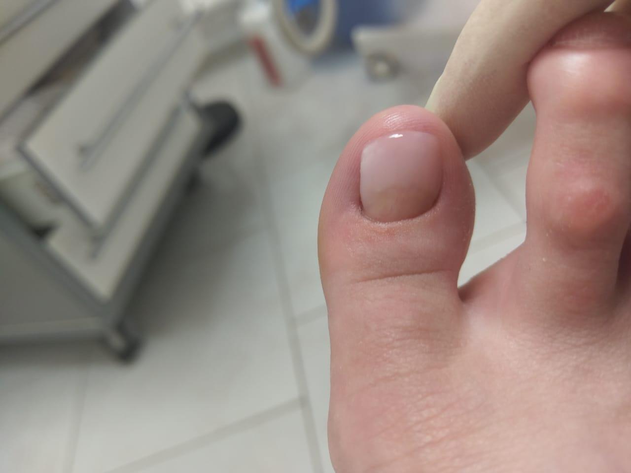 Состояние ногтя после протезирования