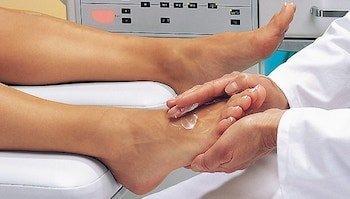 Лечение трещин на стопах ног